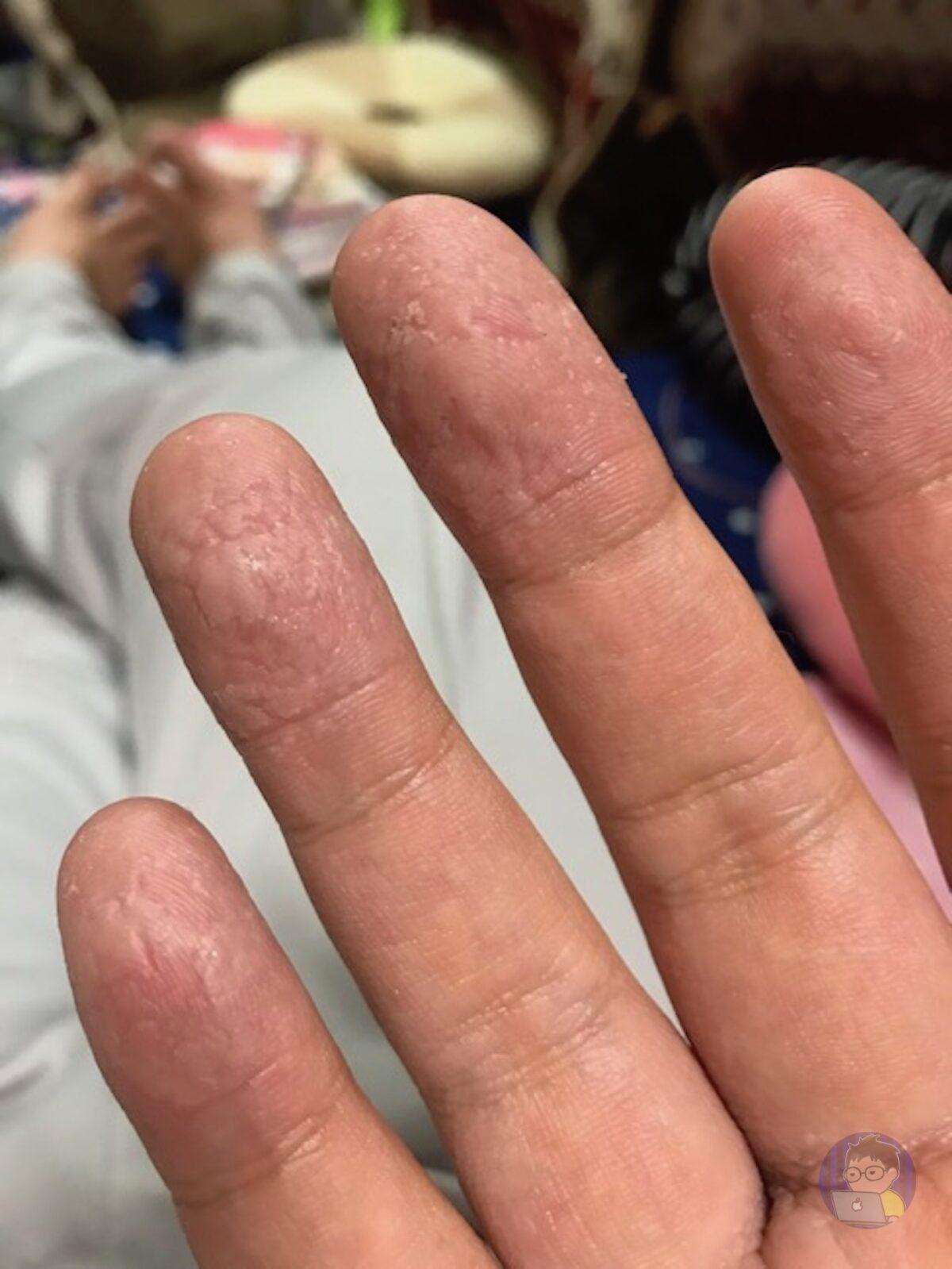 手の皮がボロボロ
