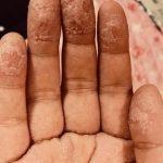 手の皮がボロボロになってる!?〜風呂上がりの手が大変なことになってる〜