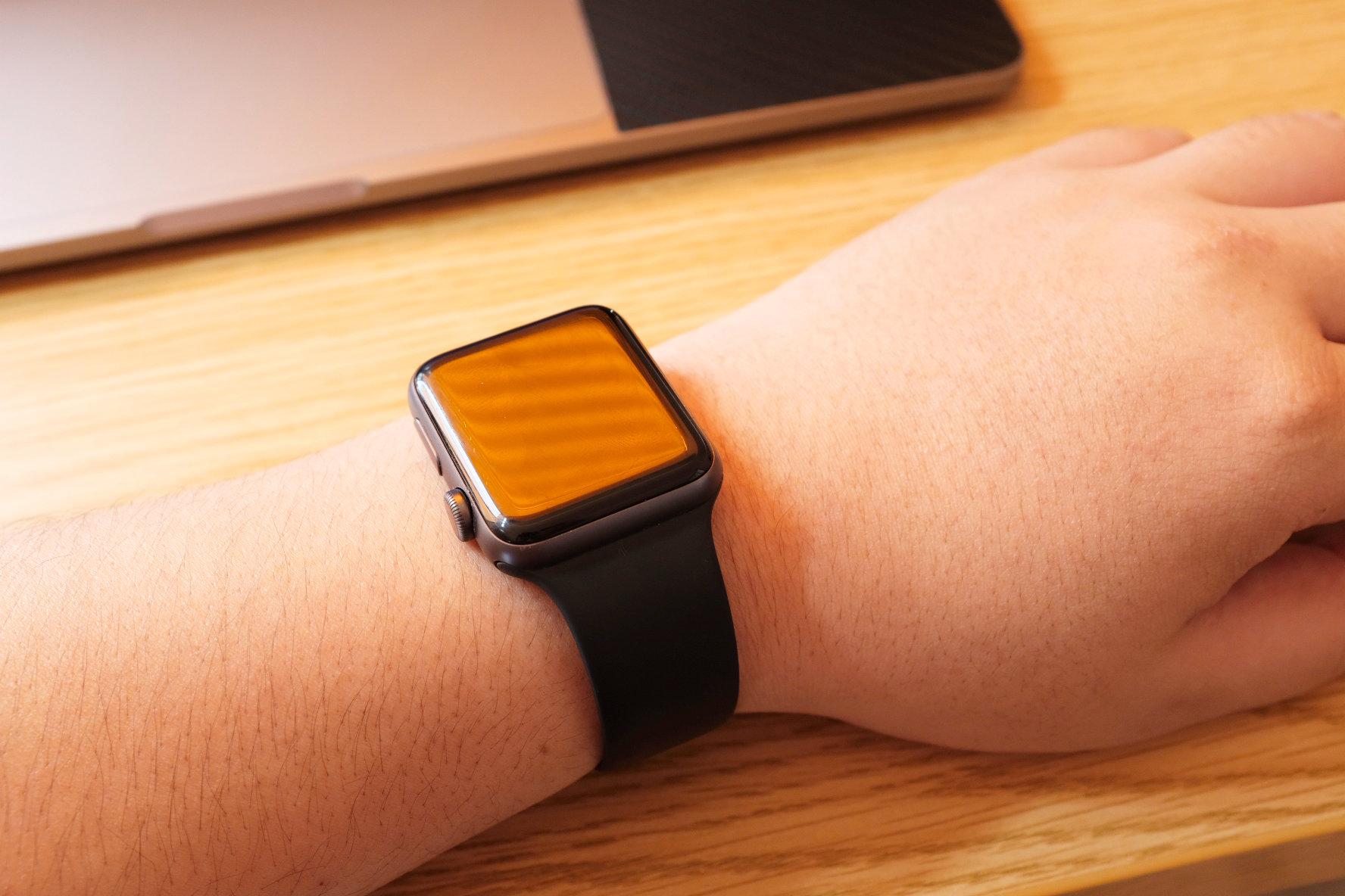 Apple Watchで手首が痒くなってきたときの3つ対策!
